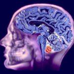Основные отличия МРТ головного мозга от КТ и какой метод лучше выбрать?
