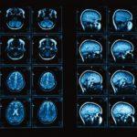 Что надо знать о подготовке к МРТ головного мозга?