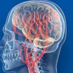 Особенности проведения КТ сосудов и мягких тканей головного мозга с использованием контраста