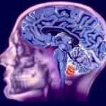 Для чего необходимо МРА исследование головного мозга?