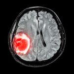 МРТ при опухолях головного мозга, преимущества и результаты