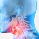 Для чего проводится МРТ щитовидной железы?
