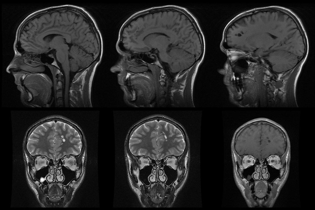 reid-facial-mri-long-red